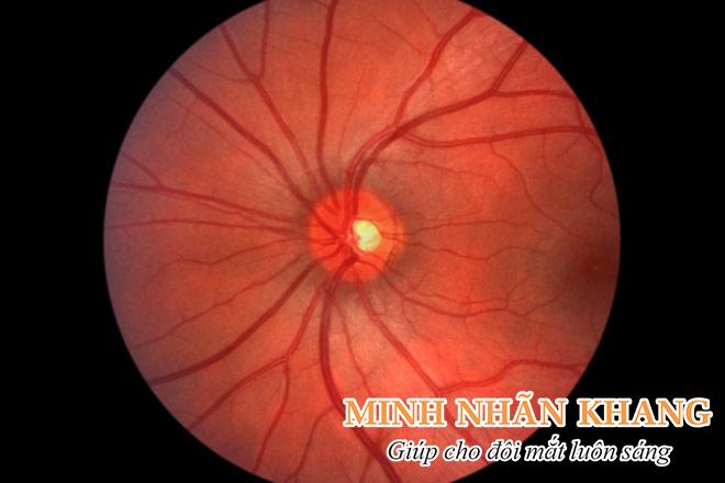Bó thần kinh thị giác phía sau một con mắt khỏe mạnh